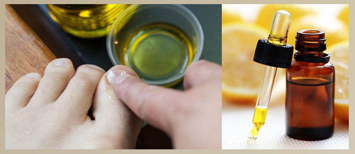 Эфирные масла от грибка ногтей