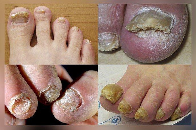 Как выглядит запущенный ногтевой грибок