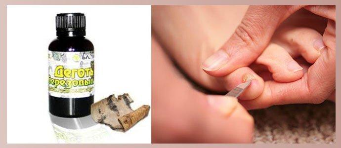 Лечение грибка ногтей березовым дегтем