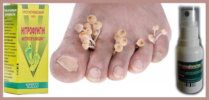 Нитрофунгин от грибка ногтей