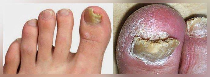 Разрушение ногтевой пластины