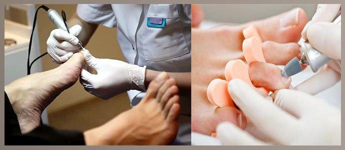 Медицинский педикюр при грибке ногтей