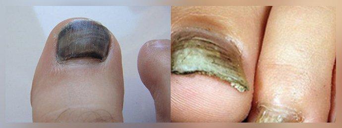 Почернение ногтя при грибке