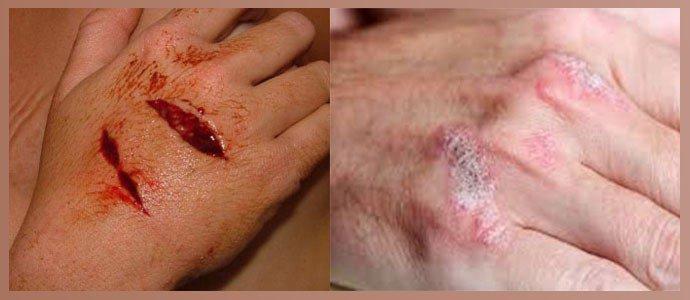 Порезы и раны, дерматологические проблемы