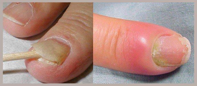Смягчение ногтевой пластины, устранение гиперемии