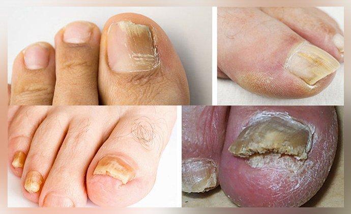 Проявление грибка на большом пальце