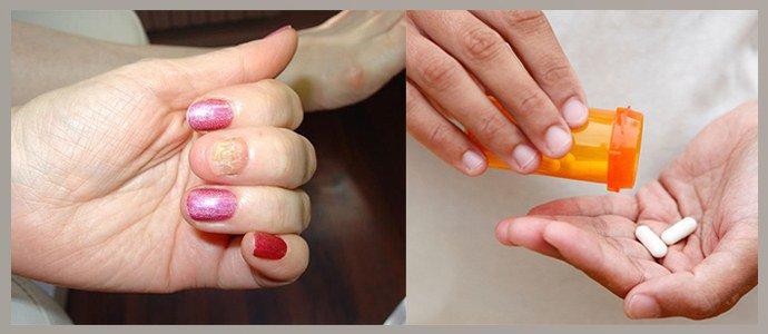 Травмы ногтей, бесконтрольный прием антибиотиков