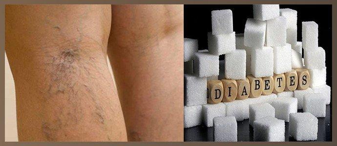 Варикозное расширение вен, сахарный диабет