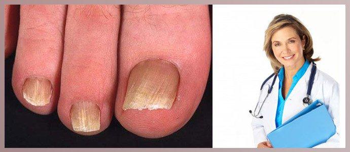 Врач лечит грибок ногтей на ногах