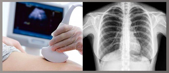 Узи брюшной полости, рентген