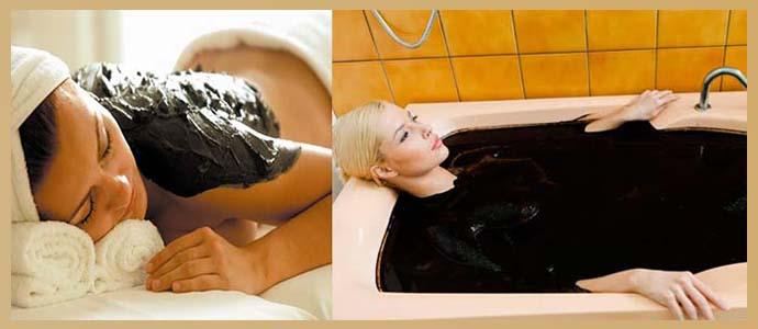 Нафталановые ванны и аппликации
