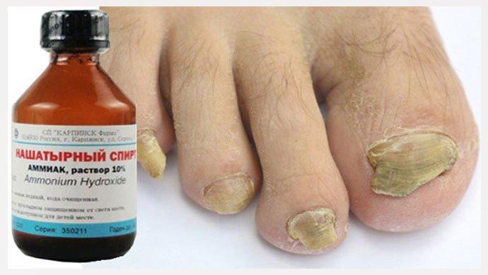Нашатырный спирт от грибка ногтей