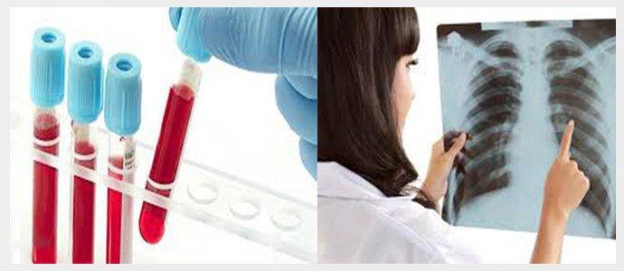 Общий анализ крови, рентген грудной клетки