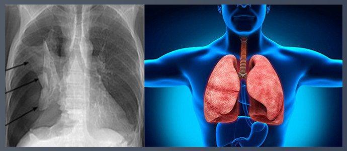 Пневмоторакс, кровотечение в дыхательных путях