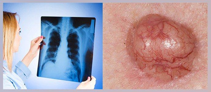 Туберкулез, Злокачественные опухоли