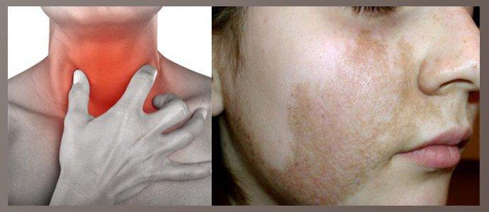 Жжение, гиперпигментация кожи