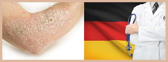 Лечение псориаза в Германии