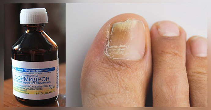 Формидрон для ног — Грибок Ногтей