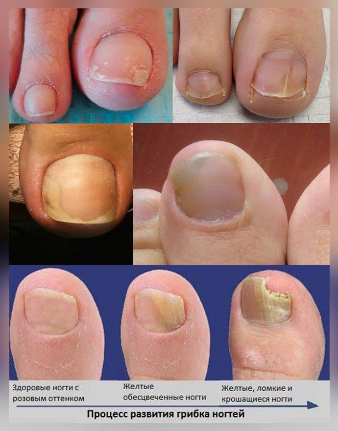 Грибок ногтей начальная стадия развития