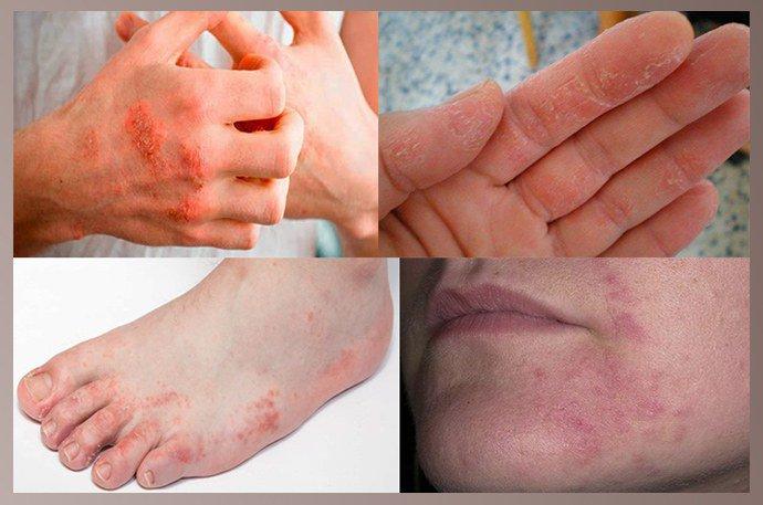 Локализация аллергической экземы