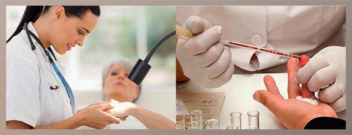 Методы диагностики тилотической экземы