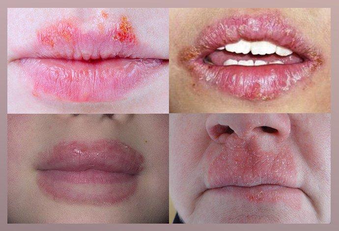 Проявление экземы на губах