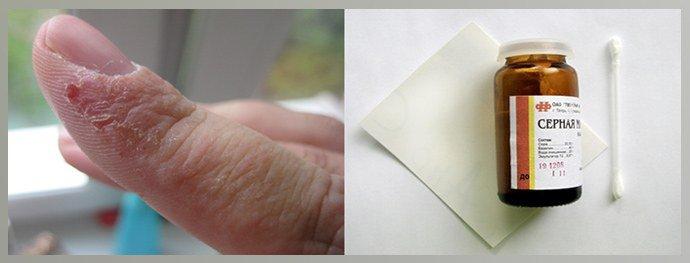 Применение серной мази на руках