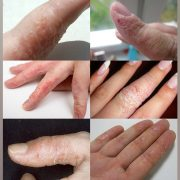 Экзема в области пальцев рук