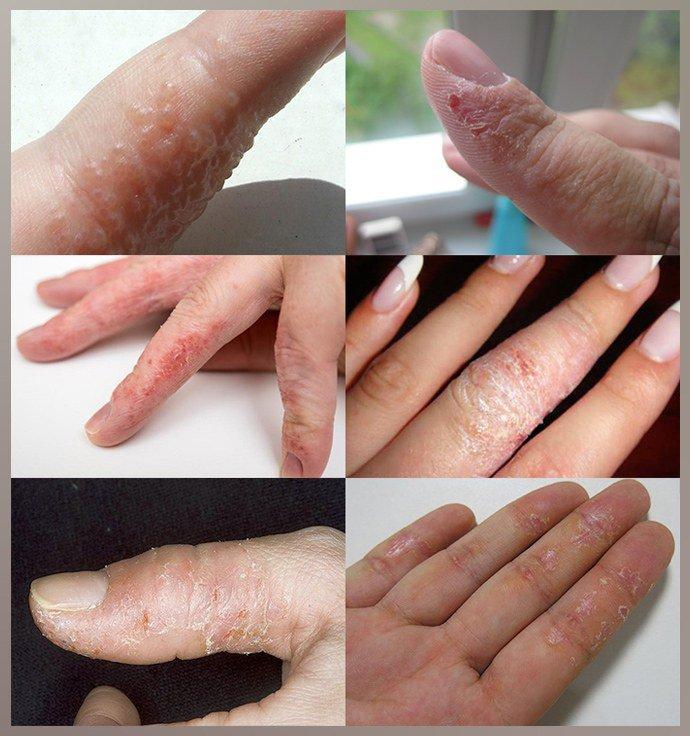 Проявление экземы на пальцах рук