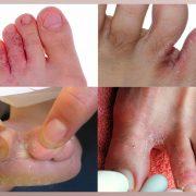 Экзема на пальцах и между пальцами ног