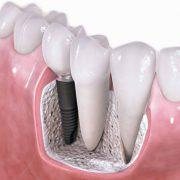 Имплантация зубов. Материалы и стоимость
