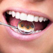 Внутренние (невидимые) брекеты: все плюсы и минусы исправления прикуса зубов лингвальными брекетами