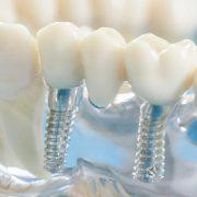 Противопоказания при имплантации зубов