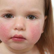 У ребенка аллергия. Как лечить?