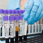 Лабораторная диагностика. Распространенные виды анализов