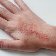 Про атопический дерматит